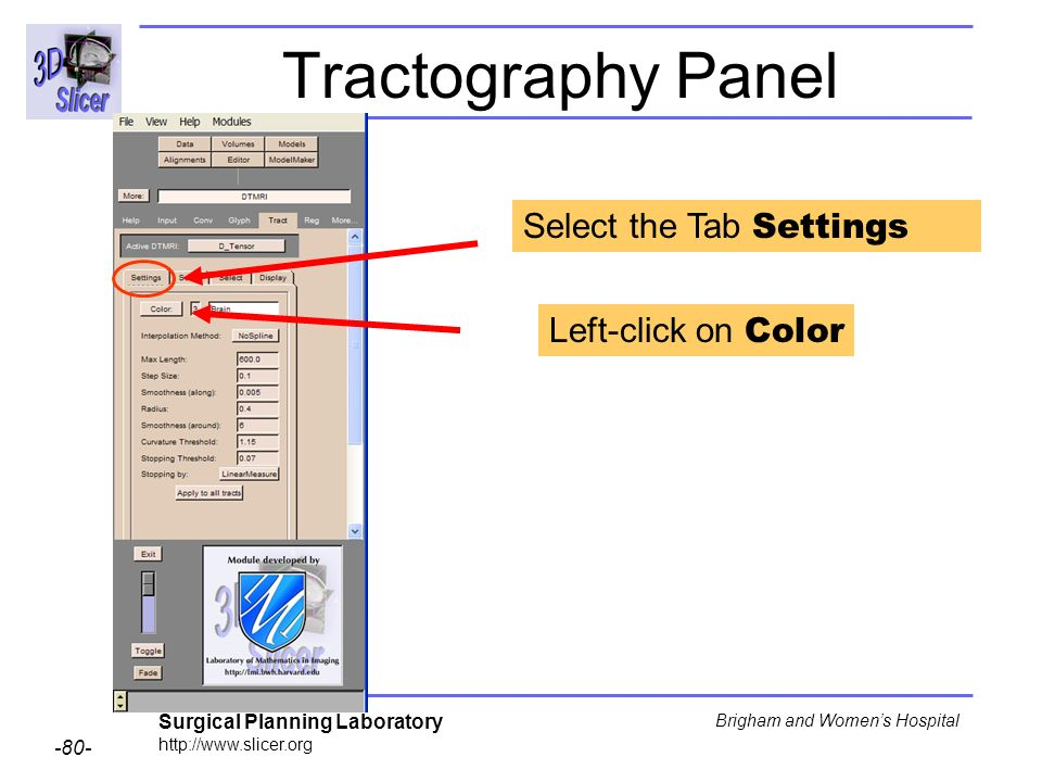 Surgical Planning Laboratory Brigham and Womens Hospital Tractography Panel Select the Tab Settings Left-click on Color