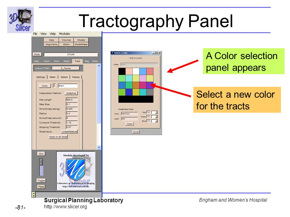 Surgical Planning Laboratory http://www.slicer.org -81- Brigham and Womens Hospital Tractography Panel A Color selection panel appears Select a new color for the tracts