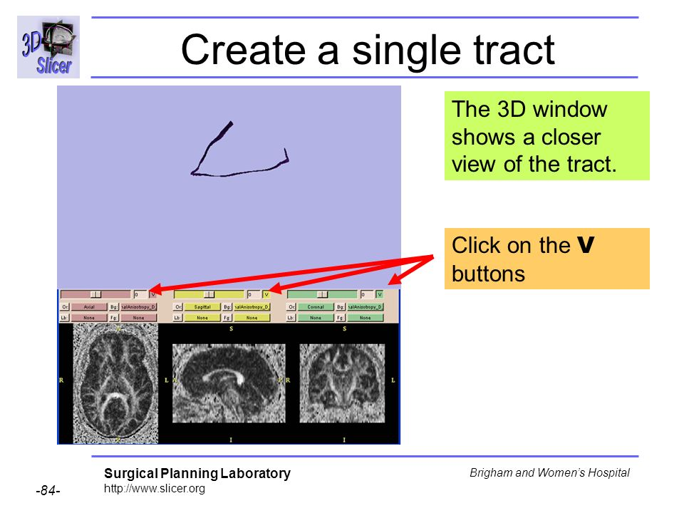 Surgical Planning Laboratory Brigham and Womens Hospital Create a single tract Click on the V buttons The 3D window shows a closer view of the tract.