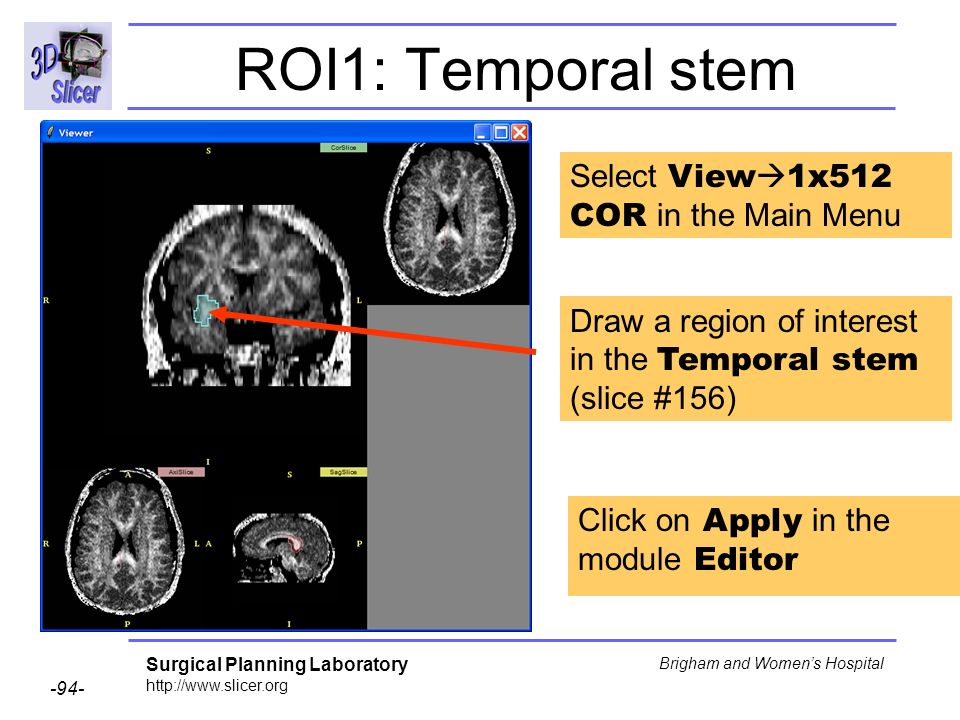 Surgical Planning Laboratory Brigham and Womens Hospital ROI1: Temporal stem Draw a region of interest in the Temporal stem (slice #156) Select View 1x512 COR in the Main Menu Click on Apply in the module Editor