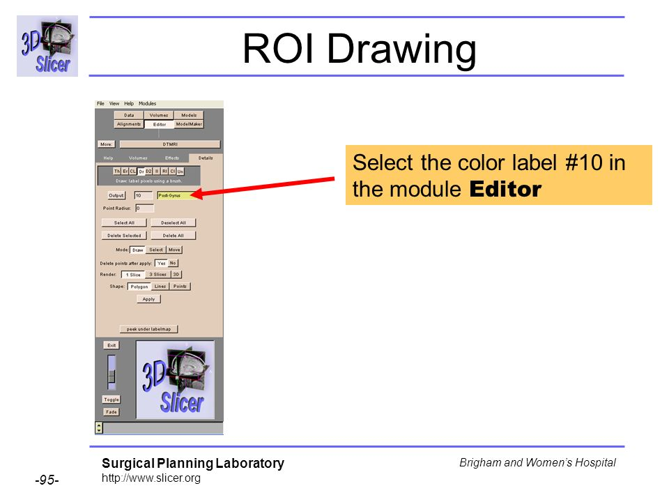 Surgical Planning Laboratory http://www.slicer.org -95- Brigham and Womens Hospital ROI Drawing Select the color label #10 in the module Editor