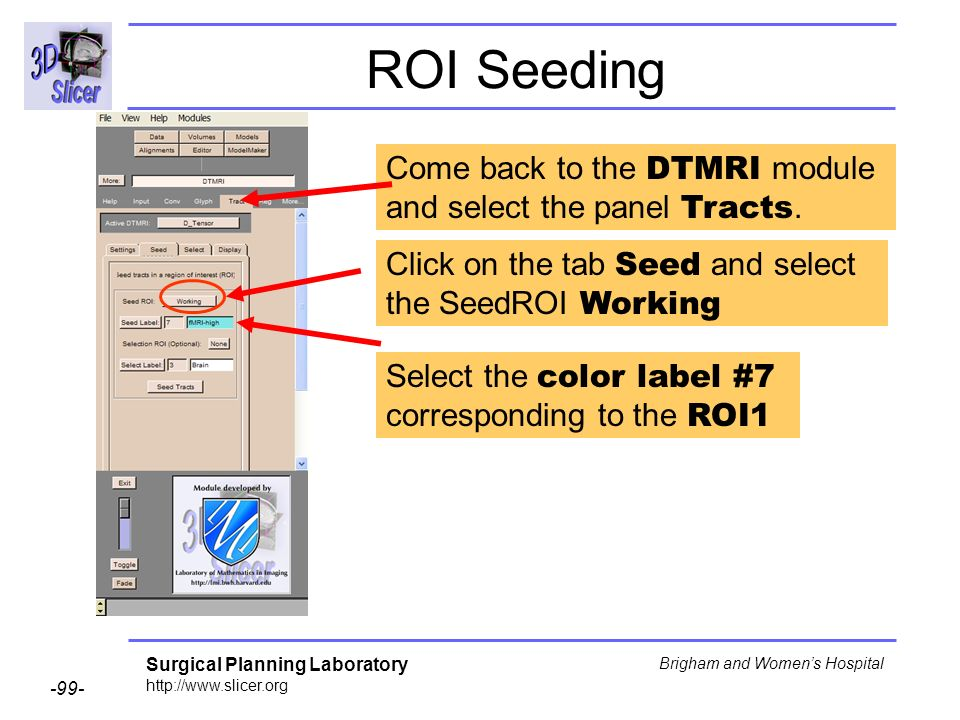 Surgical Planning Laboratory http://www.slicer.org -99- Brigham and Womens Hospital Come back to the DTMRI module and select the panel Tracts. Click o