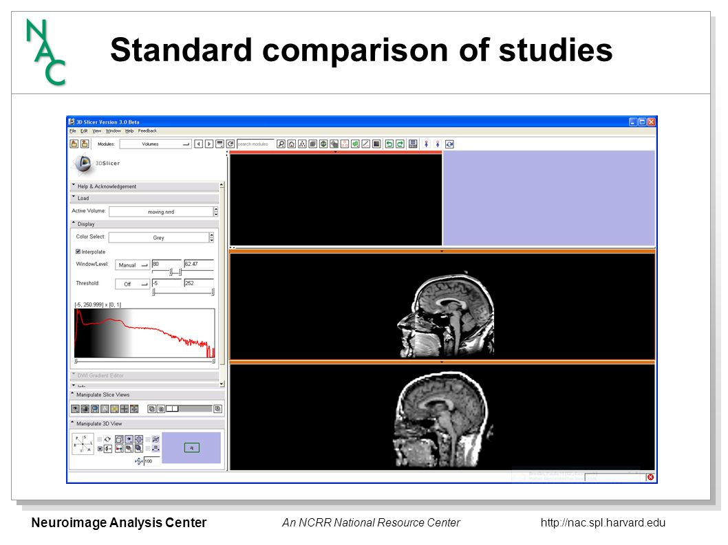 Neuroimage Analysis Center   An NCRR National Resource Center Standard comparison of studies
