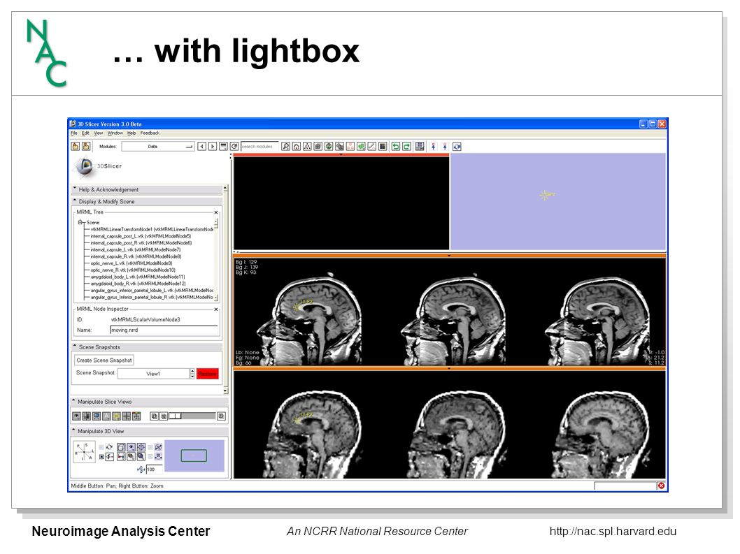 Neuroimage Analysis Center   An NCRR National Resource Center … with lightbox