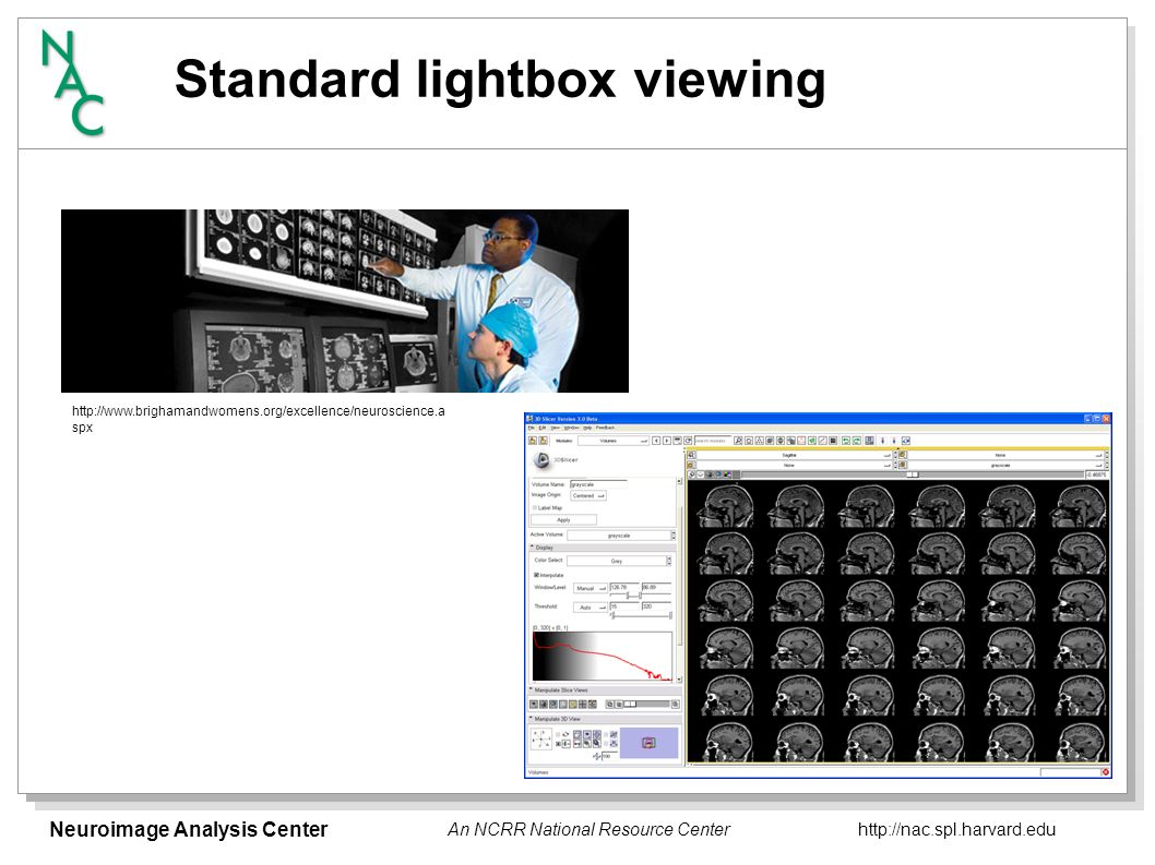 Neuroimage Analysis Center   An NCRR National Resource Center Standard lightbox viewing   spx