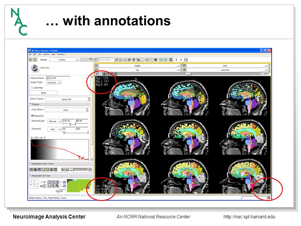 Neuroimage Analysis Center http://nac.spl.harvard.edu An NCRR National Resource Center … with fiducials