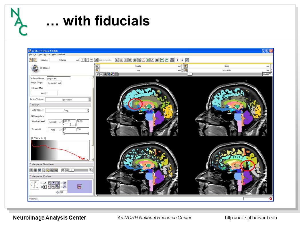 Neuroimage Analysis Center http://nac.spl.harvard.edu An NCRR National Resource Center … with multiple reformations