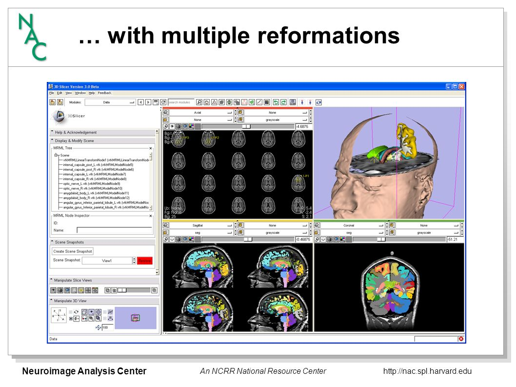 Neuroimage Analysis Center   An NCRR National Resource Center … with multiple reformations