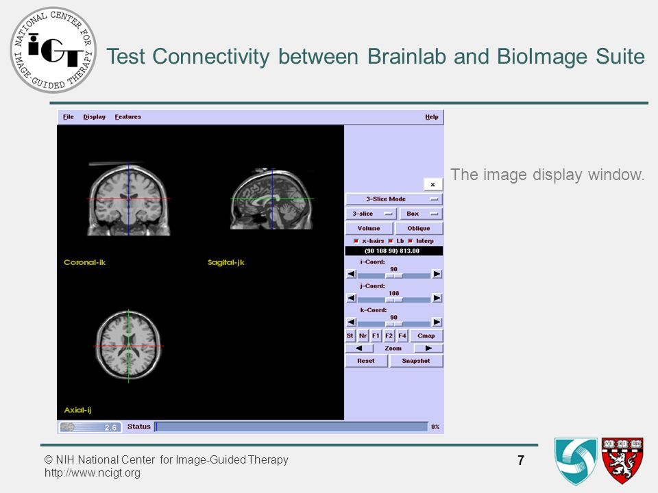 © NIH National Center for Image-Guided Therapy http://www.ncigt.org 7 Test Connectivity between Brainlab and BioImage Suite The image display window.