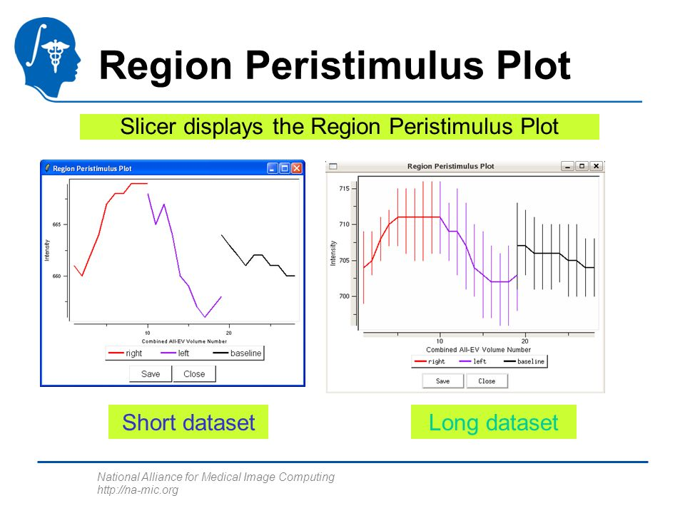 National Alliance for Medical Image Computing http://na-mic.org Region Peristimulus Plot Slicer displays the Region Peristimulus Plot Short datasetLon