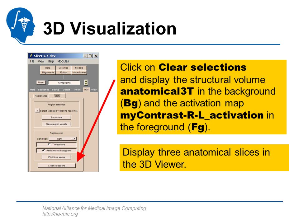 National Alliance for Medical Image Computing http://na-mic.org 3D Visualization Click on Clear selections and display the structural volume anatomica