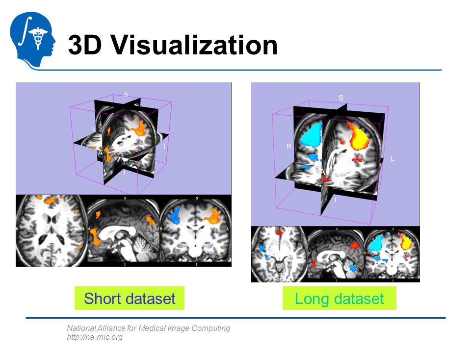 National Alliance for Medical Image Computing http://na-mic.org 3D Visualization Short datasetLong dataset