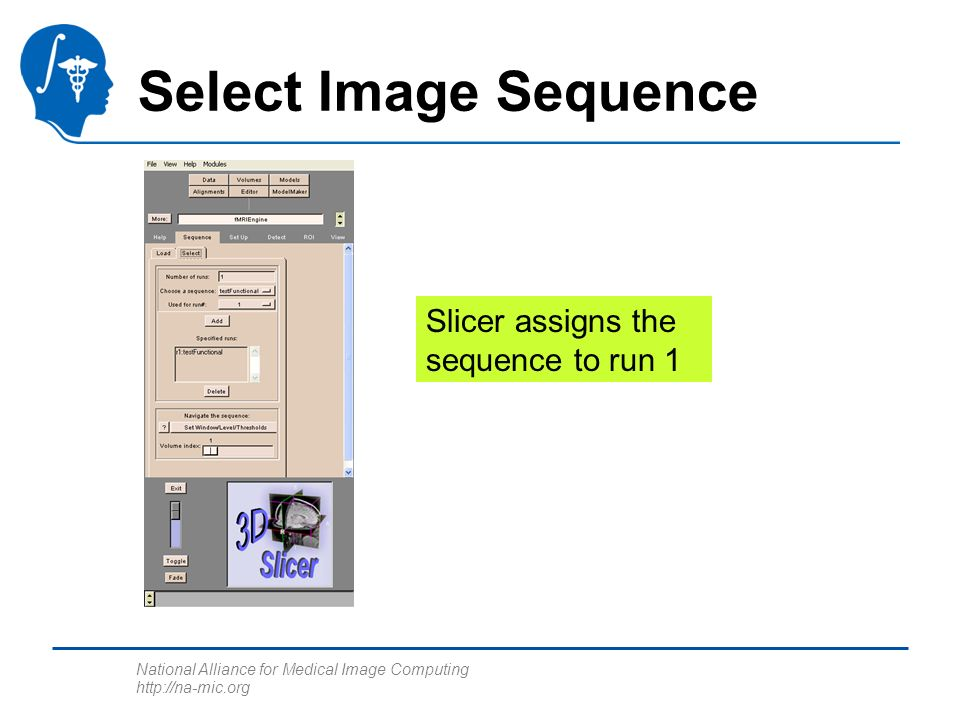 National Alliance for Medical Image Computing http://na-mic.org Select Image Sequence Slicer assigns the sequence to run 1