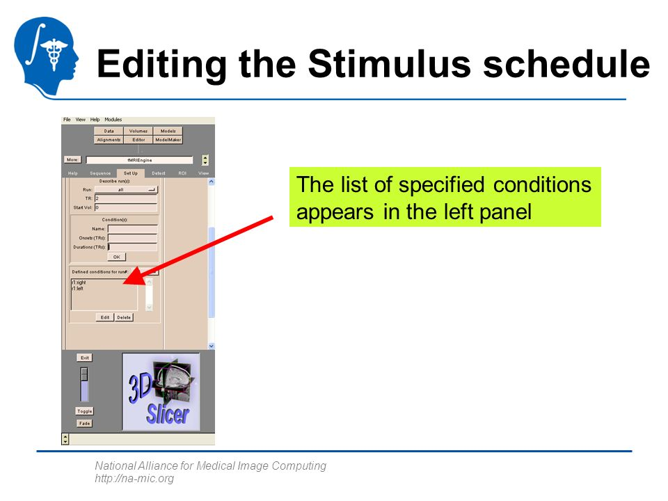 National Alliance for Medical Image Computing http://na-mic.org Editing the Stimulus schedule The list of specified conditions appears in the left pan