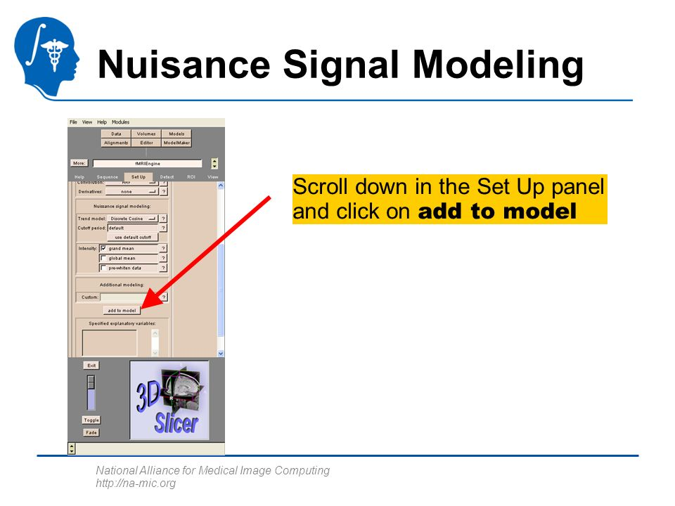 National Alliance for Medical Image Computing http://na-mic.org Nuisance Signal Modeling Scroll down in the Set Up panel and click on add to model