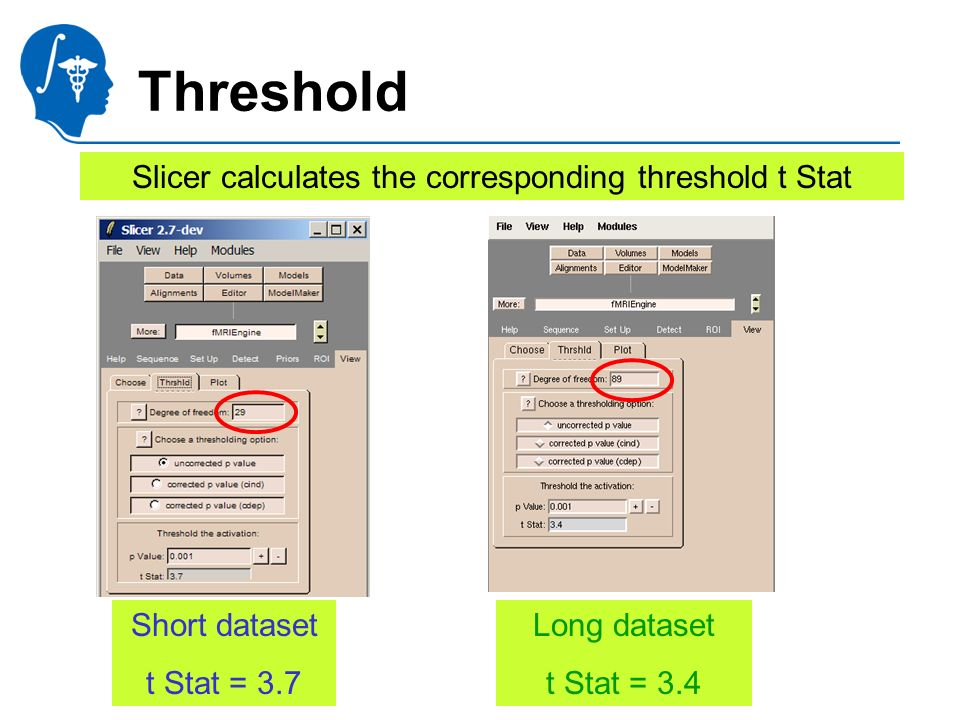 National Alliance for Medical Image Computing http://na-mic.org Threshold Slicer calculates the corresponding threshold t Stat Short dataset t Stat =