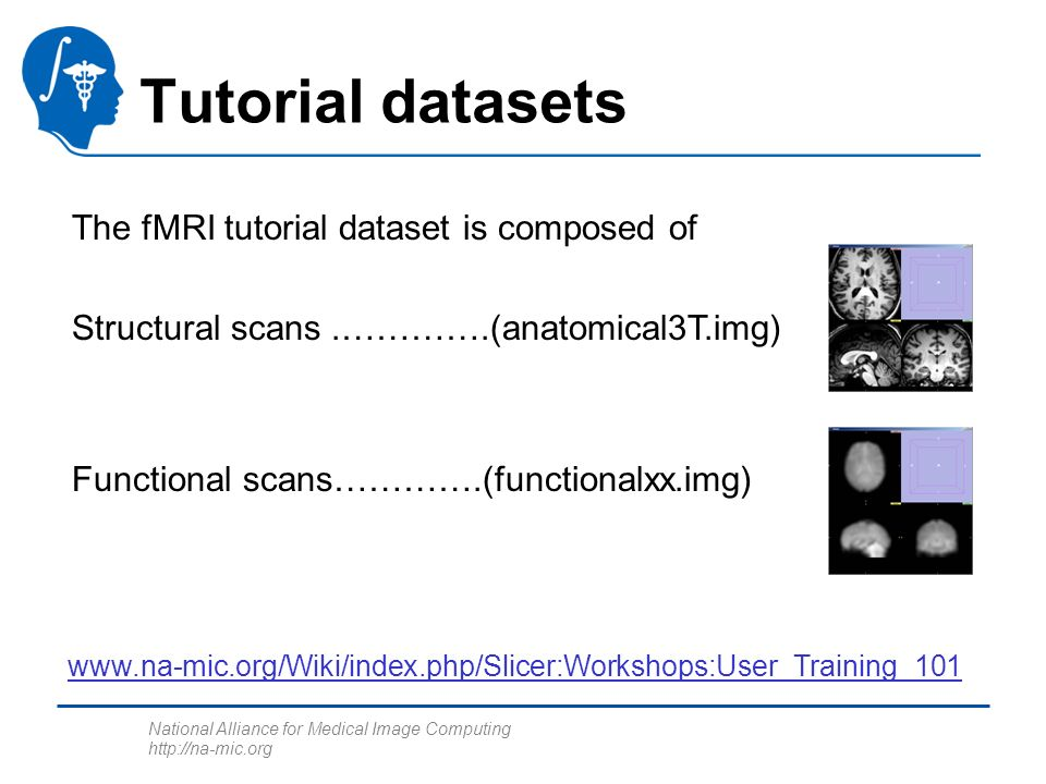 National Alliance for Medical Image Computing http://na-mic.org The fMRI tutorial dataset is composed of Structural scans.………….(anatomical3T.img) Func
