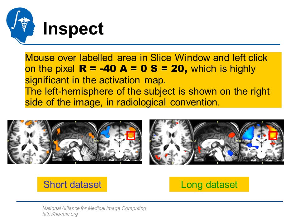 National Alliance for Medical Image Computing http://na-mic.org Inspect Mouse over labelled area in Slice Window and left click on the pixel R = -40 A