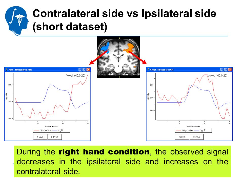 National Alliance for Medical Image Computing http://na-mic.org Contralateral side vs Ipsilateral side (short dataset) During the right hand condition