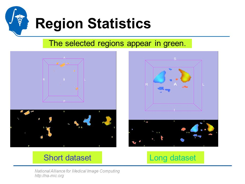 National Alliance for Medical Image Computing http://na-mic.org Region Statistics Short datasetLong dataset The selected regions appear in green.