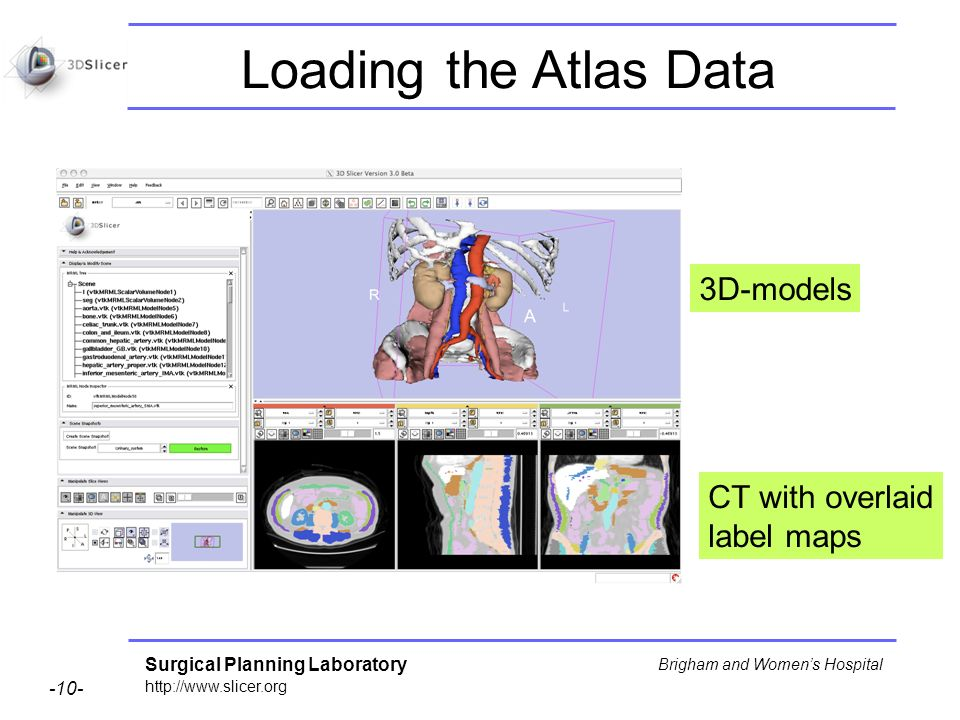 Surgical Planning Laboratory http://www.slicer.org -10- Brigham and Womens Hospital 3D-models Loading the Atlas Data CT with overlaid label maps
