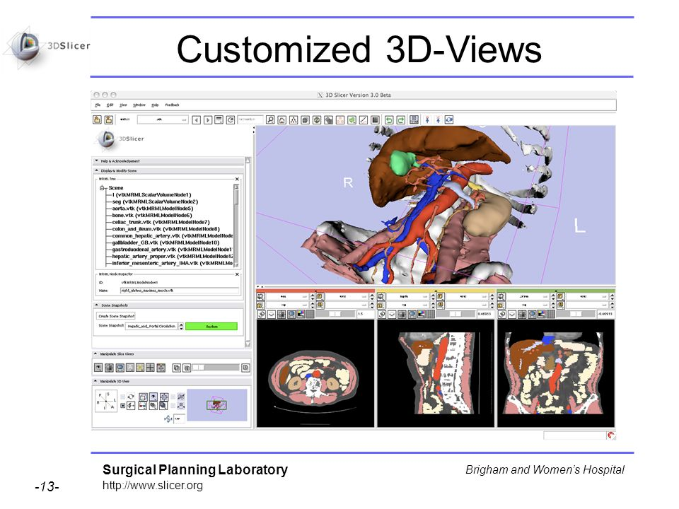 Surgical Planning Laboratory http://www.slicer.org -13- Brigham and Womens Hospital Customized 3D-Views