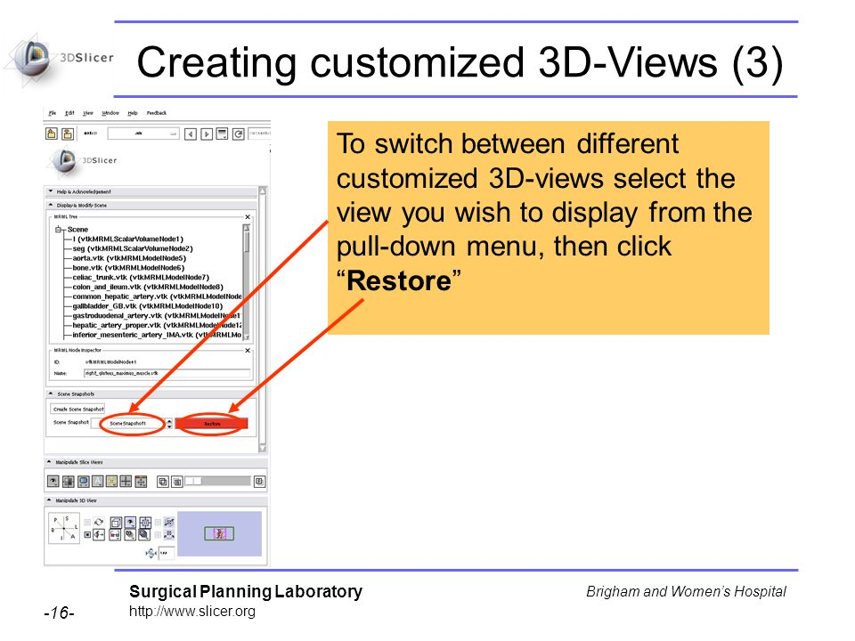Surgical Planning Laboratory http://www.slicer.org -16- Brigham and Womens Hospital Creating customized 3D-Views (3) To switch between different customized 3D-views select the view you wish to display from the pull-down menu, then clickRestore
