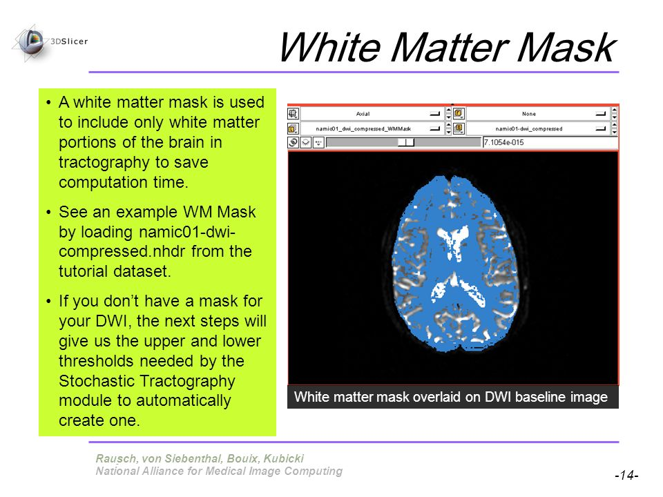 Pujol S, Gollub R -14- National Alliance for Medical Image Computing White Matter Mask Terry, von Siebenthal, Bouix, Kubicki A white matter mask is used to include only white matter portions of the brain in tractography to save computation time.