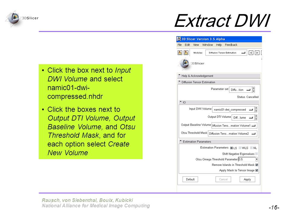 Pujol S, Gollub R -16- National Alliance for Medical Image Computing Extract DWI Terry, von Siebenthal, Bouix, Kubicki Click the box next to Input DWI Volume and select namic01-dwi- compressed.nhdr Click the boxes next to Output DTI Volume, Output Baseline Volume, and Otsu Threshold Mask, and for each option select Create New Volume Rausch, von Siebenthal, Bouix, Kubicki