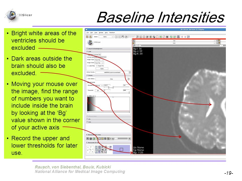 Pujol S, Gollub R -19- National Alliance for Medical Image Computing Baseline Intensities Terry, von Siebenthal, Bouix, Kubicki Bright white areas of the ventricles should be excluded Dark areas outside the brain should also be excluded.
