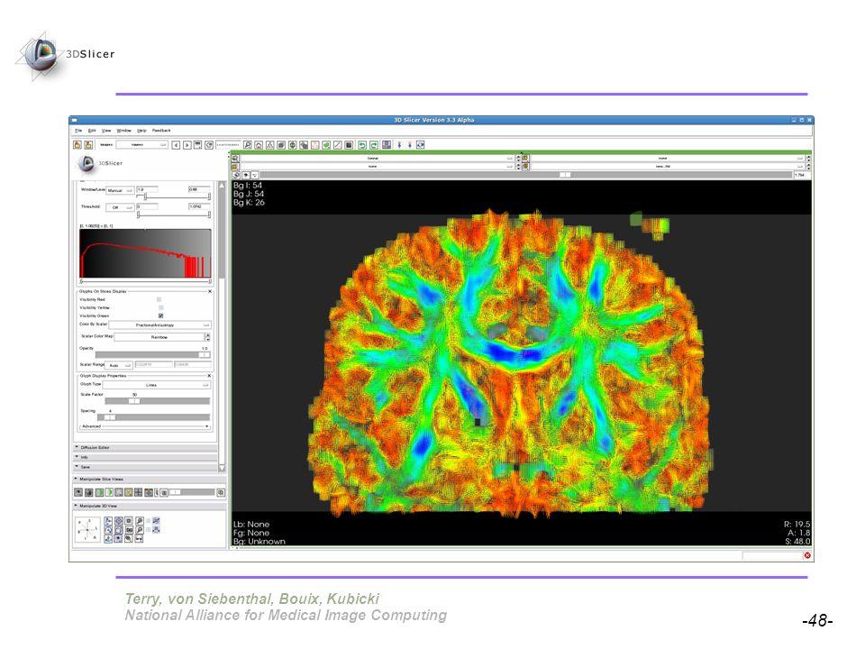 Pujol S, Gollub R -48- National Alliance for Medical Image Computing Terry, von Siebenthal, Bouix, Kubicki