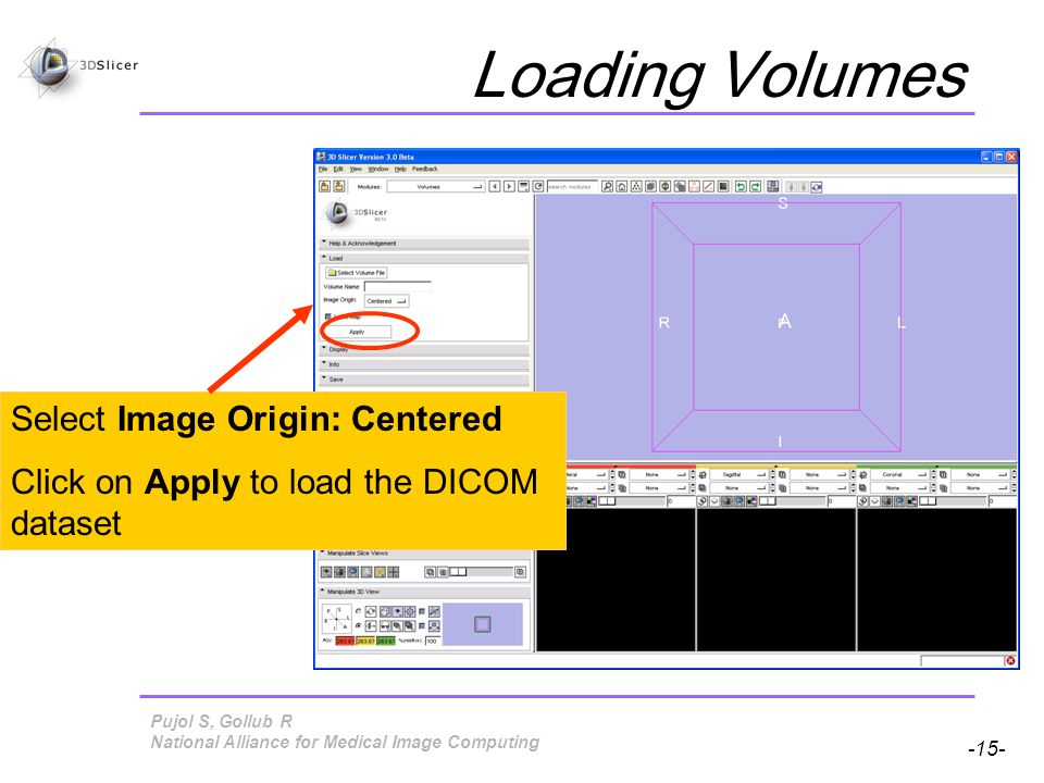 Pujol S, Gollub R -15- National Alliance for Medical Image Computing Loading Volumes Select Image Origin: Centered Click on Apply to load the DICOM dataset