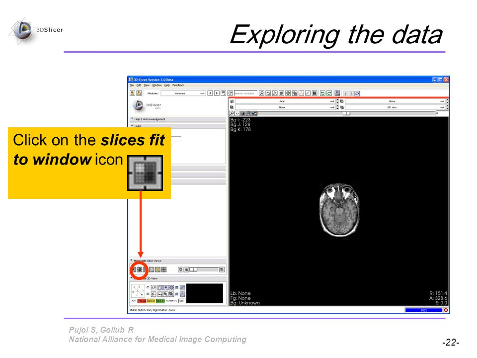 Pujol S, Gollub R -22- National Alliance for Medical Image Computing Exploring the data Click on the slices fit to window icon