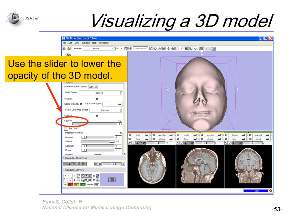 Pujol S, Gollub R -53- National Alliance for Medical Image Computing Visualizing a 3D model Use the slider to lower the opacity of the 3D model.