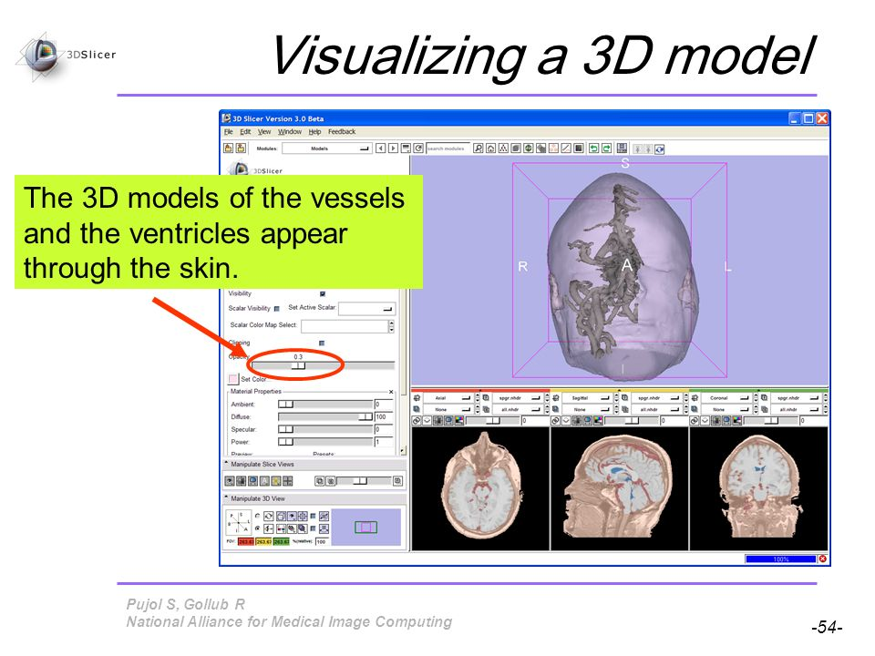 Pujol S, Gollub R -54- National Alliance for Medical Image Computing Visualizing a 3D model The 3D models of the vessels and the ventricles appear through the skin.