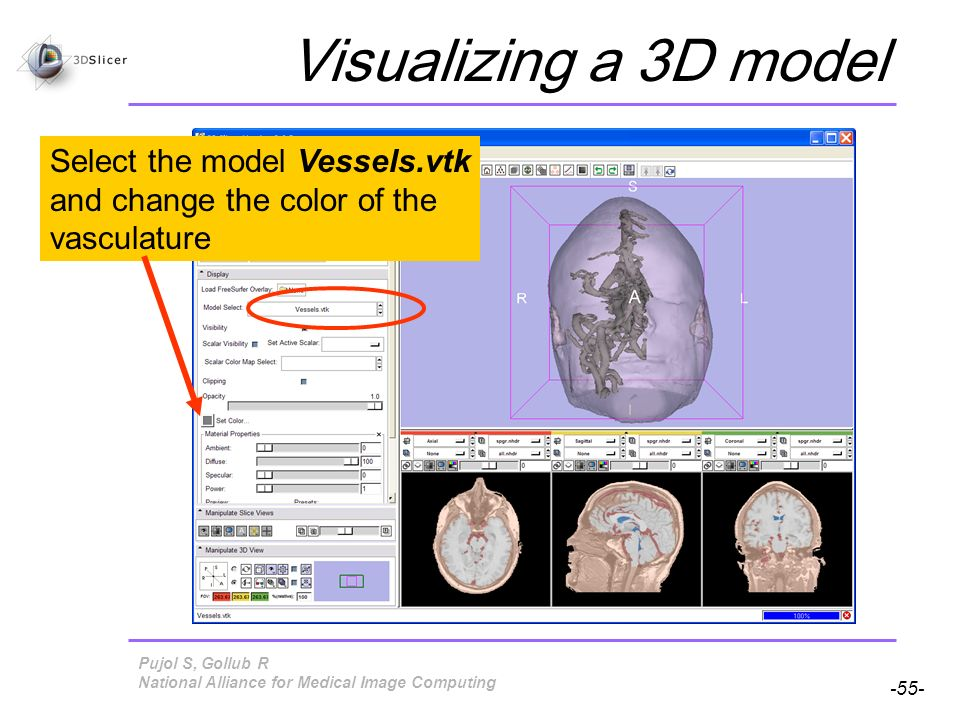 Pujol S, Gollub R -55- National Alliance for Medical Image Computing Visualizing a 3D model Select the model Vessels.vtk and change the color of the vasculature