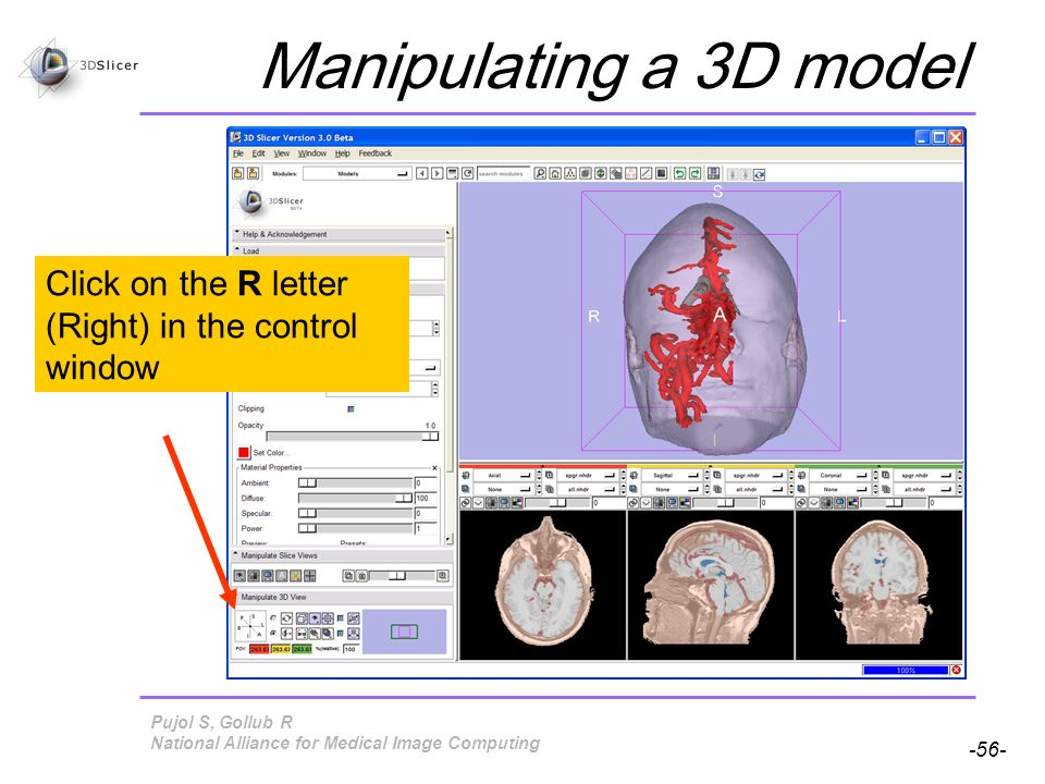 Pujol S, Gollub R -56- National Alliance for Medical Image Computing Manipulating a 3D model Click on the R letter (Right) in the control window
