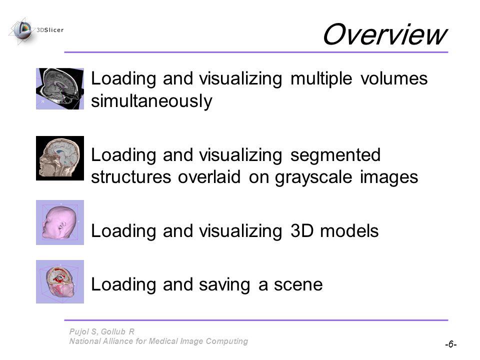 Pujol S, Gollub R -77- National Alliance for Medical Image Computing Saving Data Check the box Save Scene and click on Save