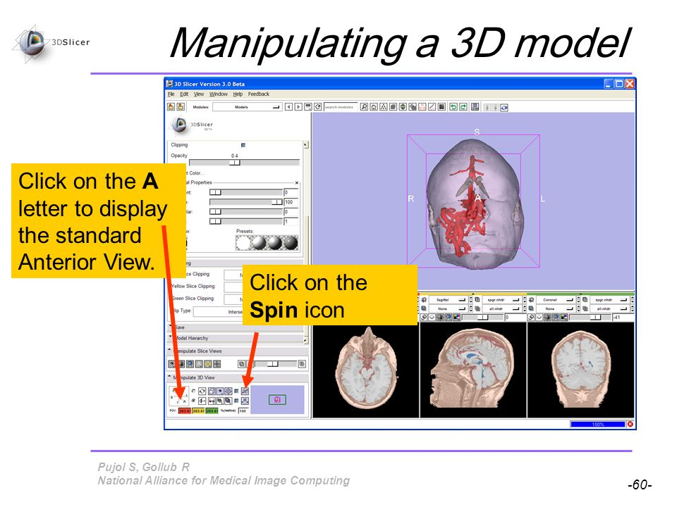 Pujol S, Gollub R -60- National Alliance for Medical Image Computing Manipulating a 3D model Click on the A letter to display the standard Anterior View.