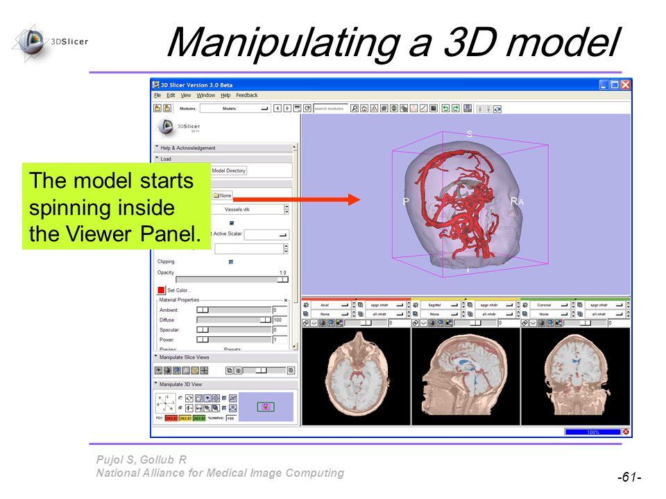 Pujol S, Gollub R -61- National Alliance for Medical Image Computing Manipulating a 3D model The model starts spinning inside the Viewer Panel.
