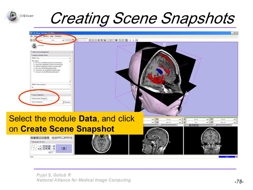 Pujol S, Gollub R -78- National Alliance for Medical Image Computing Creating Scene Snapshots Select the module Data, and click on Create Scene Snapshot