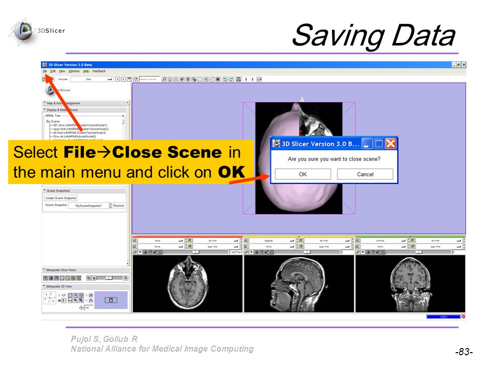 Pujol S, Gollub R -83- National Alliance for Medical Image Computing Saving Data Select File Close Scene in the main menu and click on OK