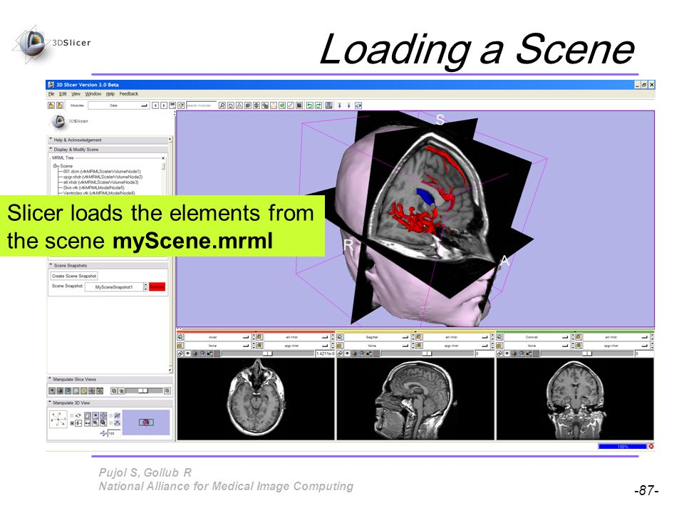 Pujol S, Gollub R -87- National Alliance for Medical Image Computing Loading a Scene Slicer loads the elements from the scene myScene.mrml