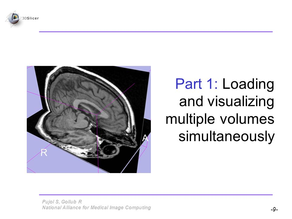 Pujol S, Gollub R -10- National Alliance for Medical Image Computing Loading Volumes The Data module is the module displayed by default in the GUI.