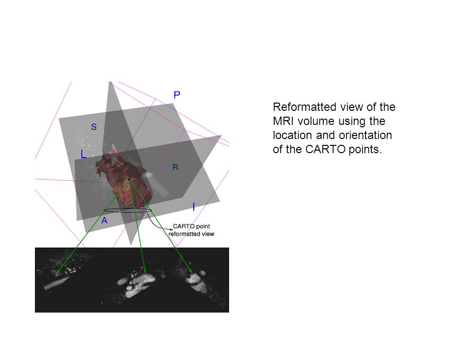 Reformatted view of the MRI volume using the location and orientation of the CARTO points.