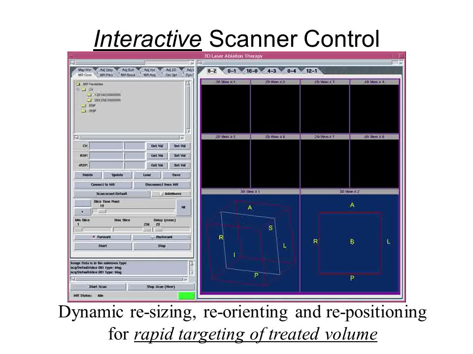 Interactive Scanner Control Dynamic re-sizing, re-orienting and re-positioning for rapid targeting of treated volume