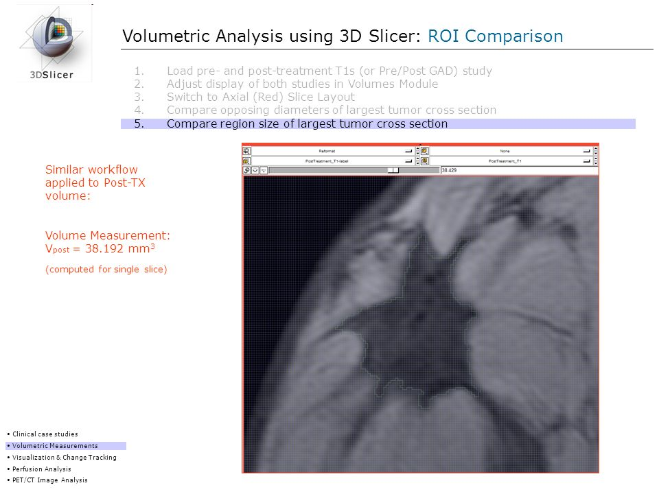 Volumetric Analysis using 3D Slicer: ROI Comparison Clinical case studies Volumetric Measurements Visualization & Change Tracking Perfusion Analysis P