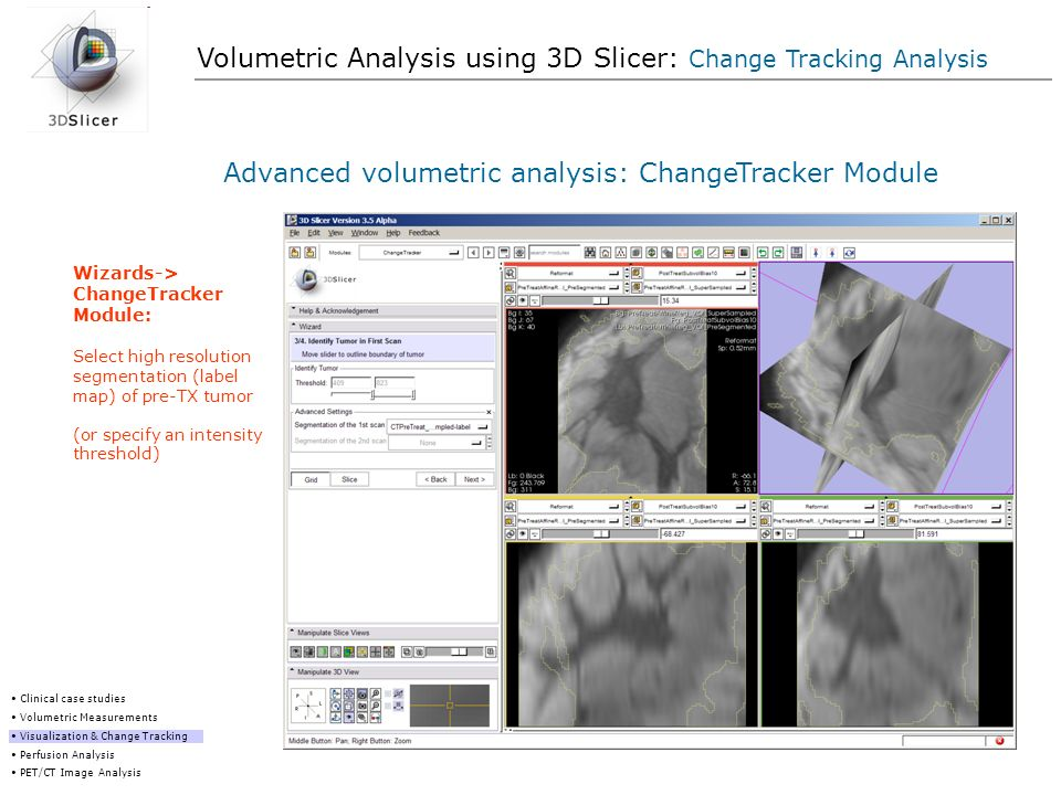 Volumetric Analysis using 3D Slicer: Change Tracking Analysis Advanced volumetric analysis: ChangeTracker Module Clinical case studies Volumetric Meas