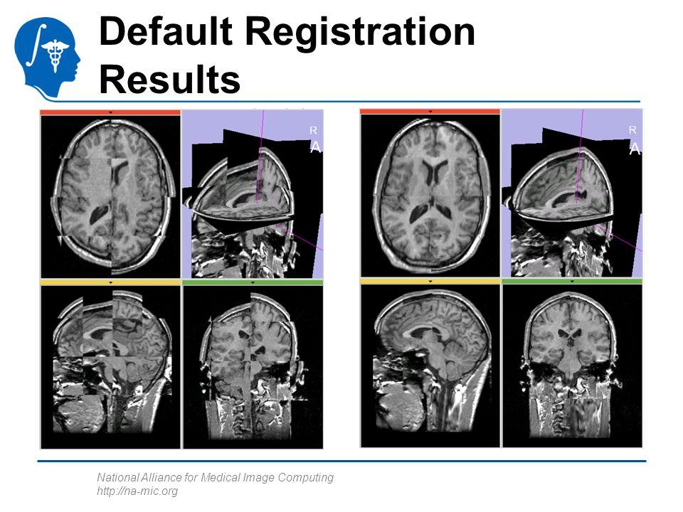 National Alliance for Medical Image Computing http://na-mic.org Default Registration Results