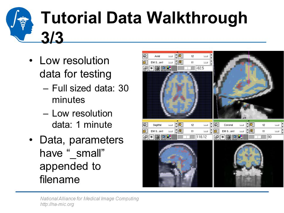 National Alliance for Medical Image Computing http://na-mic.org Tutorial Data Walkthrough 3/3 Low resolution data for testing –Full sized data: 30 minutes –Low resolution data: 1 minute Data, parameters have _small appended to filename